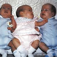 Rozwój trojaczków i bliźniąt